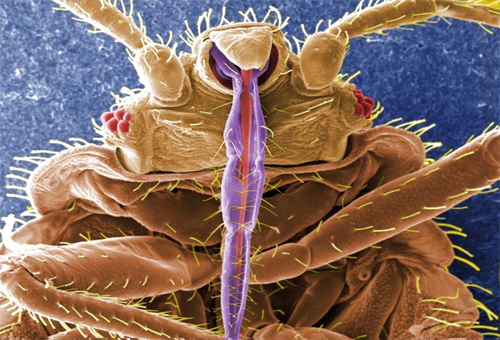 Клоп под микроскопом
