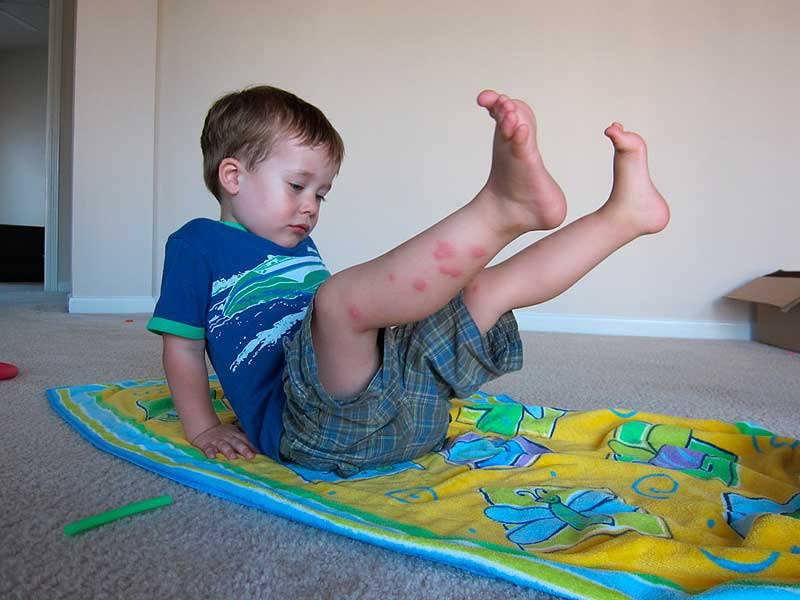 У ребенка вся нога в укусах клопов постельных